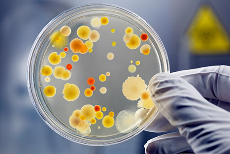 Bacteria growing in a petri dish to help depict that the Alzheimer's germ may be already appearing in labs